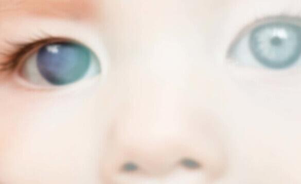 Pediatric Ophthalmology